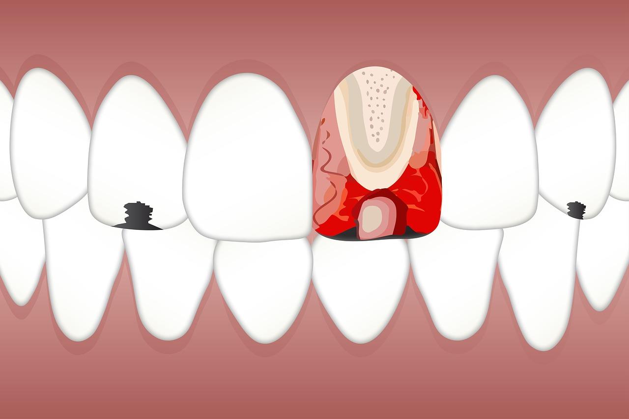 Implanty w miejsce wyrwanych zębów